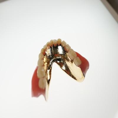 ラミネート床義歯