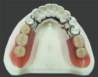キャストバー義歯